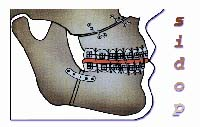 Soc. Italiana di Ortodonzia Prechirurgica